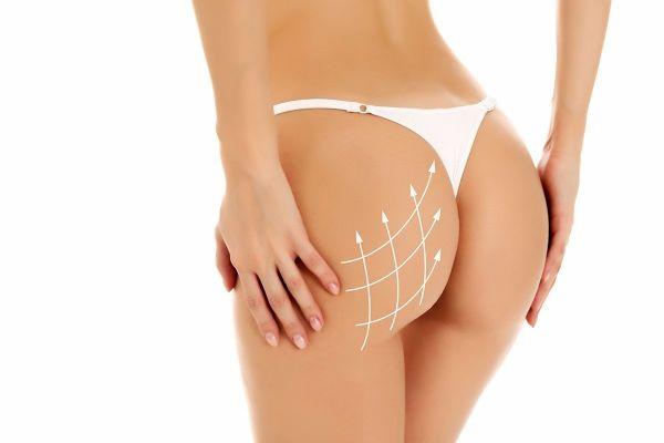 augmentation des fesses par lipofilling et par Implants